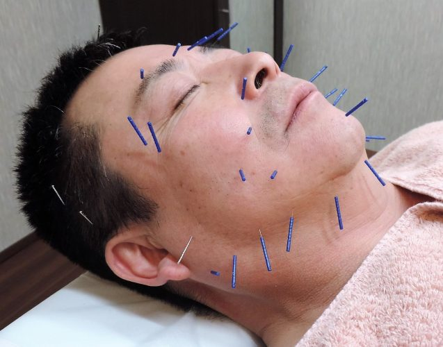 メンズ美容鍼 メンズ 美容鍼 瀬戸市 プラステン治療院