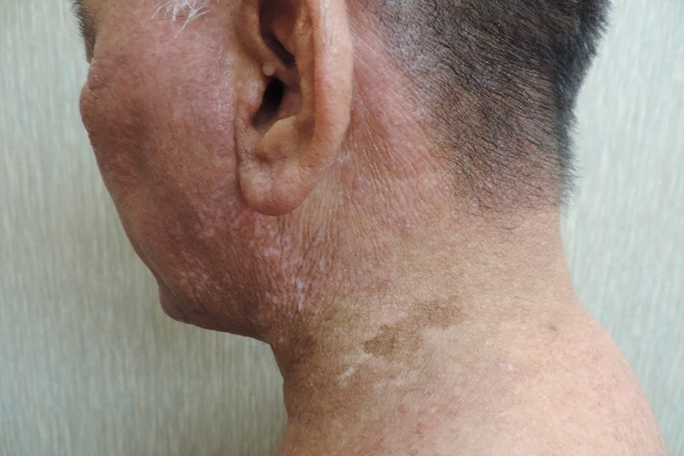 アトピー性皮膚炎 初診 before プラステン治療院 瀬戸